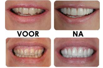 Wat is composiet tandarts